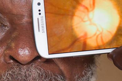 Vous pouvez désormais contrôler l'état de santé de vos yeux grâce à votre smartphone. Réactions?