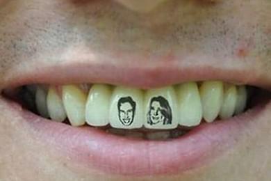 Les tatouages sur les dents t'en penses quoi ? Ça te tente ? Ça te dégoûte? Exprime toi!