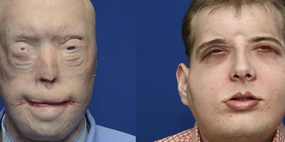 Le visage du progrès (médical)