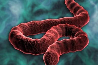 Vous sentez-vous menacés par le virus d'Ebola? Les médias en parlent sans arrêt et sème la terreur