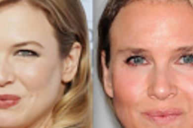 Che fine ha fatto Bridget Jones?: Meglio prima o dopo la chirurgia?