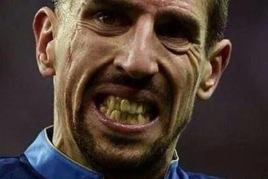 Vota il calciatore più brutto