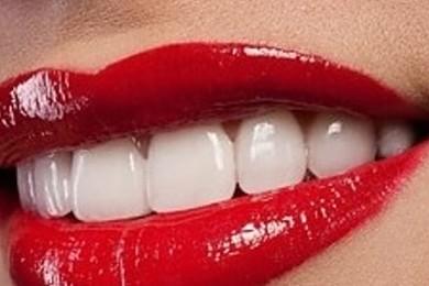 Qual è il sorriso più bello?