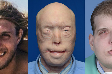 41-year-old firefighter gets a face transplant from a 26-year-old